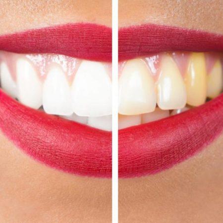yellow teeths